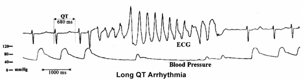 Long QT Arrhythmia
