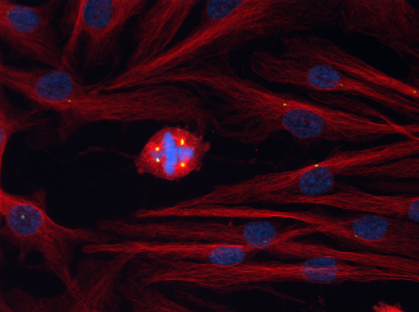 Centrosome amplification in cancer